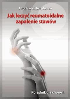 Jak leczyć reumatoidalne zapalenie stawów. Poradnik dla chorych - Jarosław Niebrzydowski - ebook