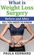What Is Weight Loss Surgery: All You Need To Know Before And After - Paula Kennard - E-Book