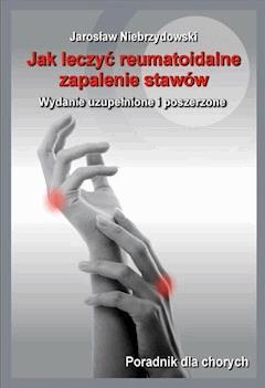 Jak leczyć reumatoidalne zapalenie stawów II - Jarosław Niebrzydowski - ebook