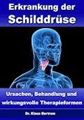 Erkrankung der Schilddrüse – Ursachen, Behandlung und wirkungsvolle Therapieformen - Dr. Klaus Bertram - E-Book